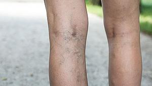 Bacaklardaki varisler tehlikeli midir?