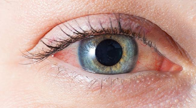 Göz alerjileri göz kaybına neden olabilir