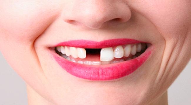 Kilo almanın sebebi eksik diş mi?