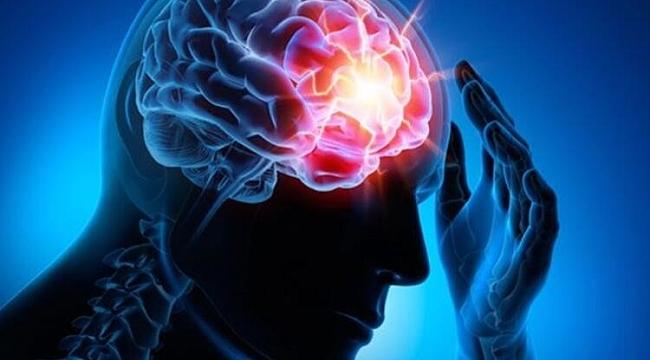 Epilepsi tanısı için nöbet anı kaydedilmeli